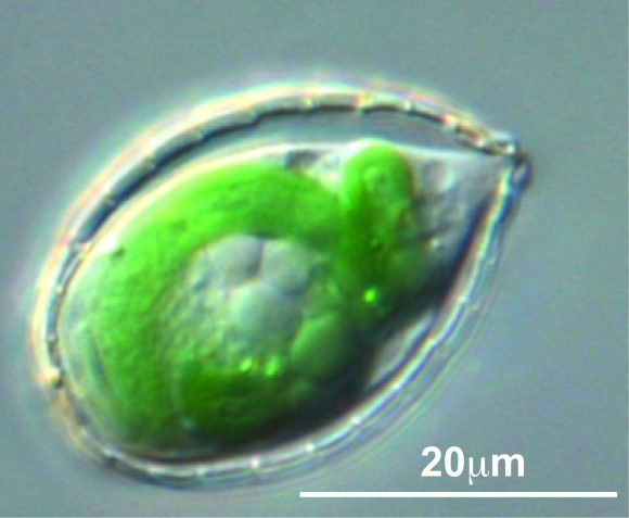 The amoeba, Paulinella, which has two large, sausage-shaped plastids for photosynthesis. Photo: Hwan Su Yoon.