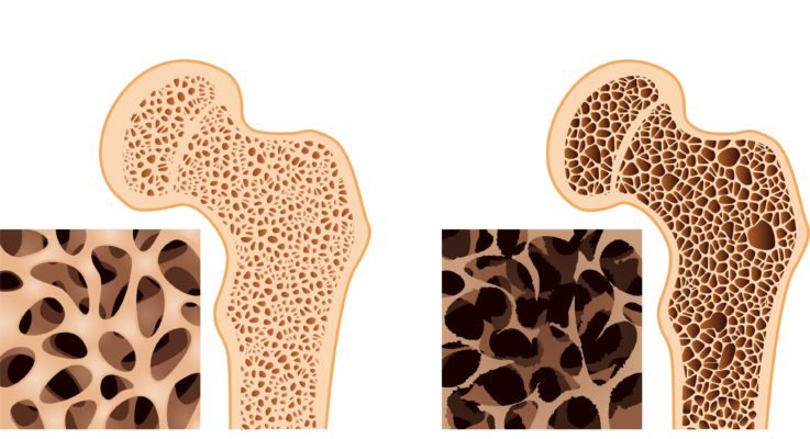 Global Call to Support Bone Health for World Osteoporosis Day Oct. 20