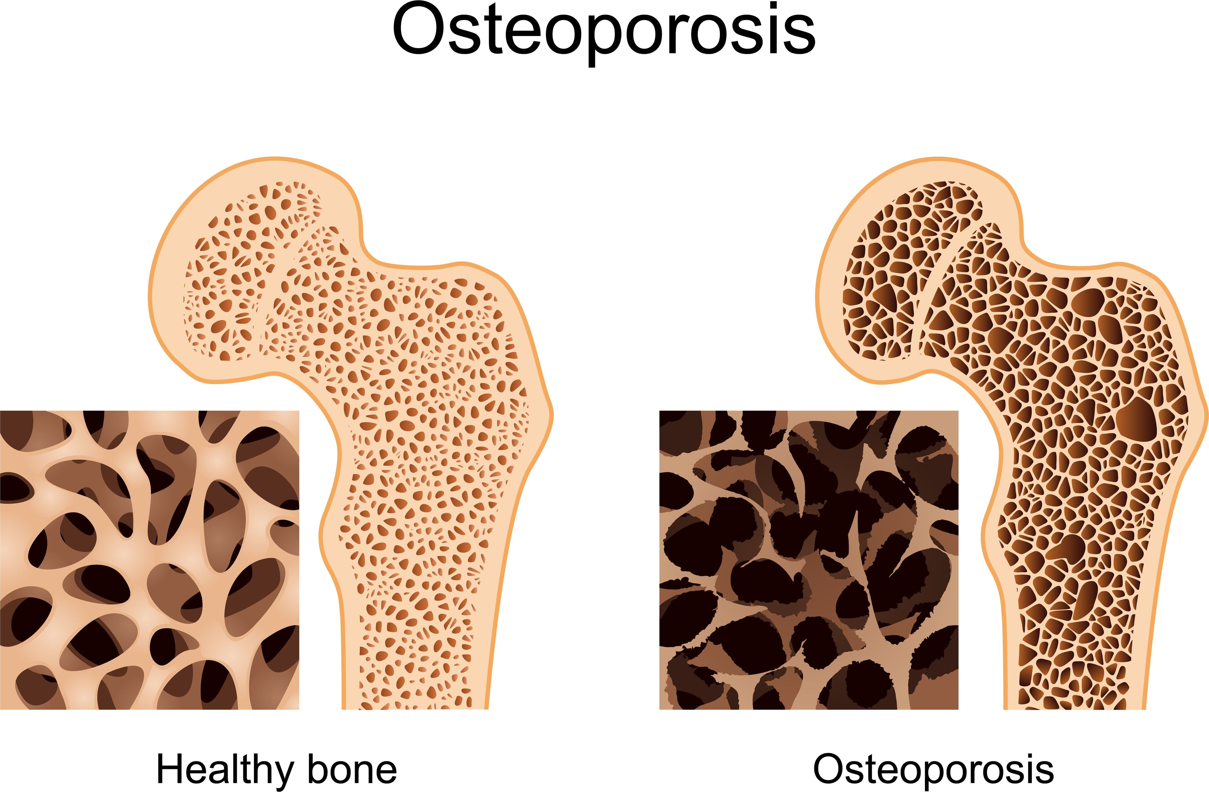 18++ Does osteoporosis run in families viral